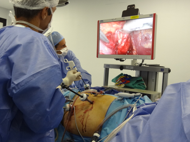 Modelo 3D como guía en cirugía