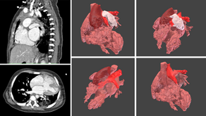 Congenital heart disease with and without 3D models: What could have been different?
