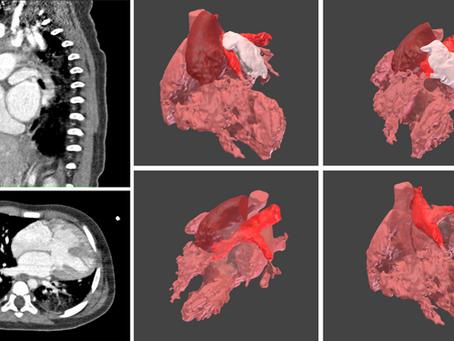 Cardiopatías congénitas con y sin modelos 3D: ¿Qué podría haber sido diferente?