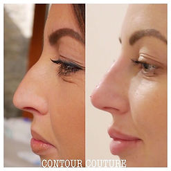 non surgical rhinoplasty) and add the b