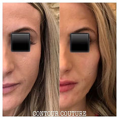 Dermal-filler-cheek-enhancement