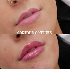 Lip-filler-before-after-picture
