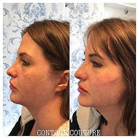 Dermal-filler-jawline-cheeks-before-after