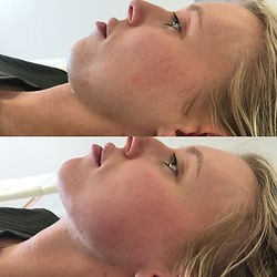 dermal-fillers-chin-before-after-results
