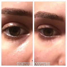 ✨Tear troughs✨ Client's own before and a