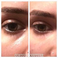 dermal-filler-tear-trough-before-after-results