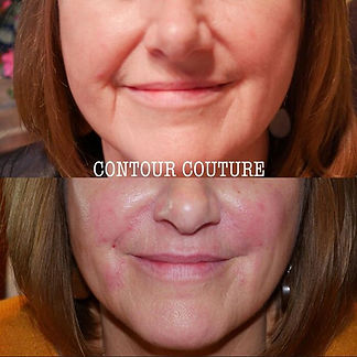 ✨Anti ageing✨ Using fillers to add youthful plumpness to the face.jpg