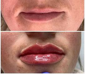 Lip fillers - tenting technique