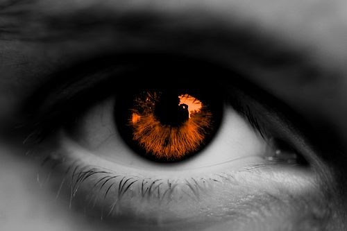What is Aliquam's Cataract?