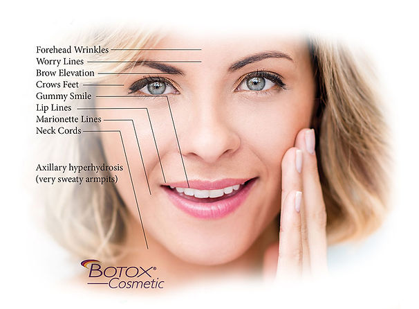 Botox-Photo-1.jpg