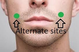 alternate chin.jpg