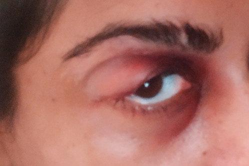 Swollen Eye Patch