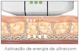 ULTHERAPY DR. EDUARDO BORNHAUSEN