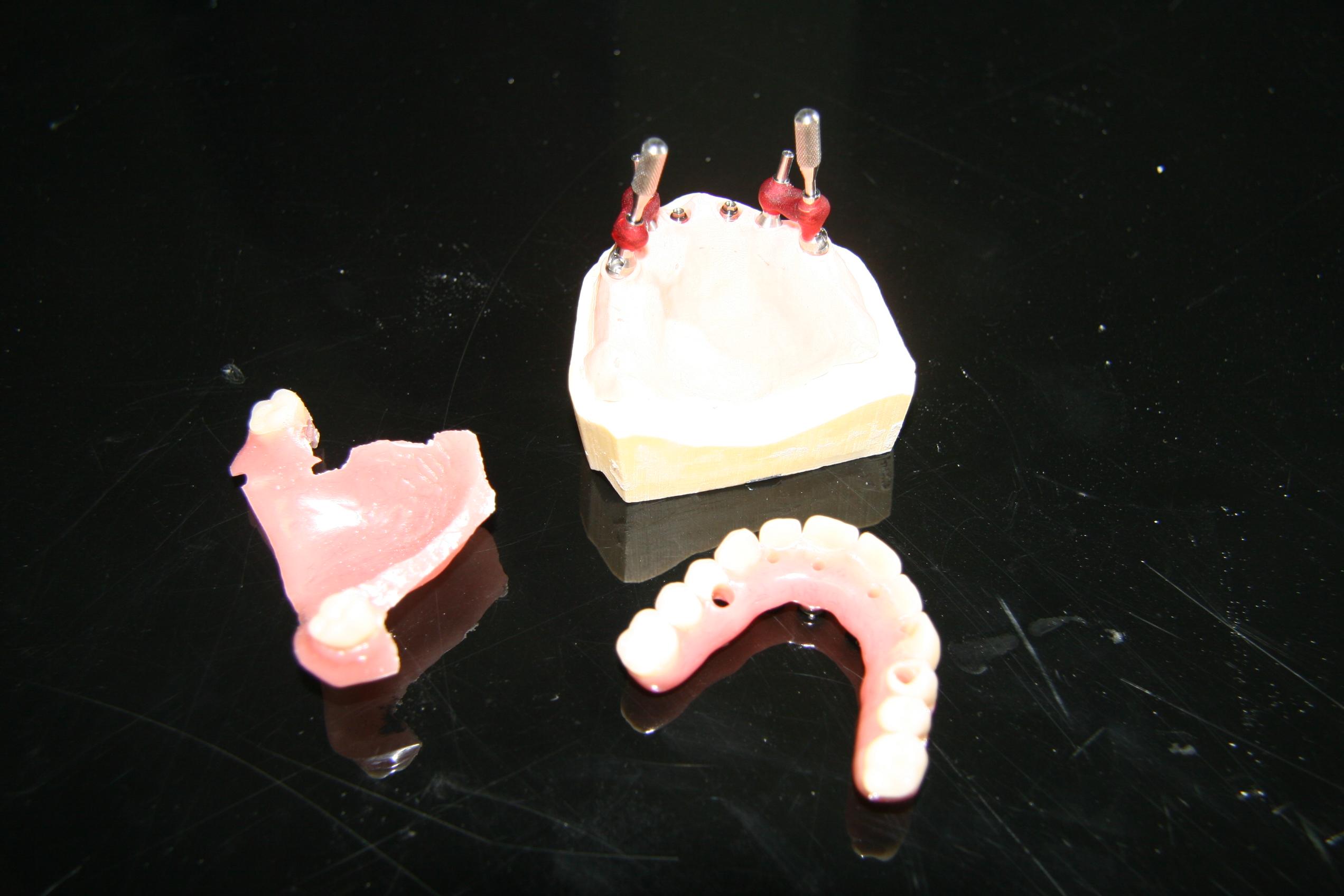préparation prothèse