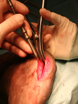 procedura chirurgica 010.png