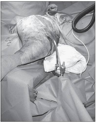 Fig. 2 Same case as in Fig. 1, showing anchorage of the traction stirrup to the supracondylar region of the distal femur (case 4).