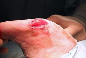 procedura chirurgica 006.png