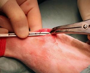 procedura chirurgica 007.png