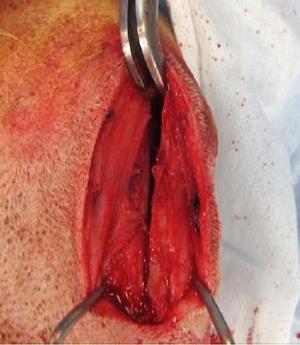 procedura chirurgica 009.png