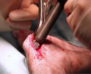 procedura chirurgica 011.png