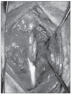 Fig. 4 Reduction of a femoral fracture obtained with skeletal traction alone (case 1).