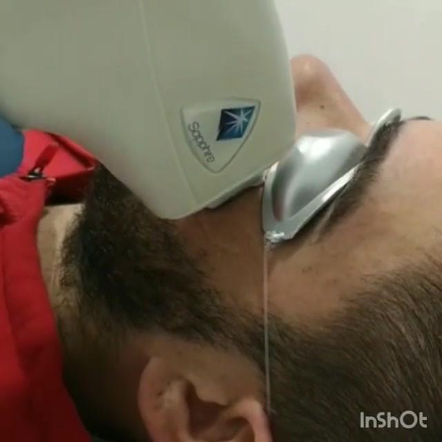 Perfilado de barba con #LaserDiodo desde