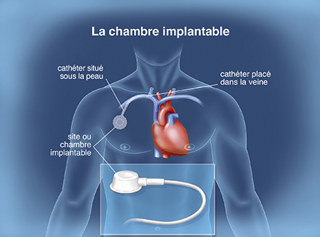 chambre implantable