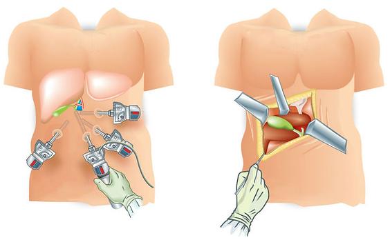 Cholécystectomie