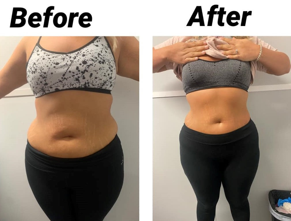 LASER LIPO + CAVITATION SPECIAL for 2