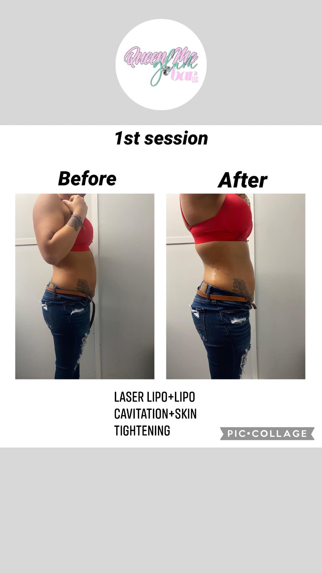 July Special Mommy Tummy Makeover