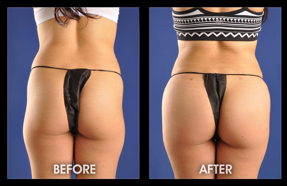 Hip Enhancement