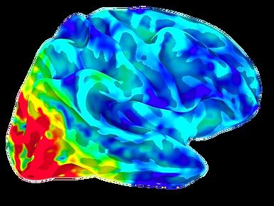 fMRI brain, Dr. Olsen, Dr. Rosanna Olsen, OlsenLab