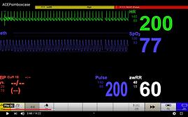 shock screen shot.png