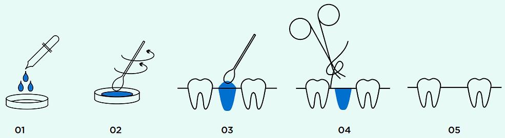 ossmed-bone-graft (1).png