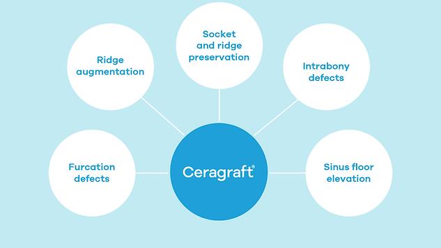 ossmed-ceragraft-scheme-02-new.png