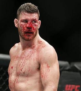 Bisping-bloody.jpg