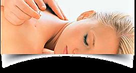 Aplicação de agulha em mulher loira