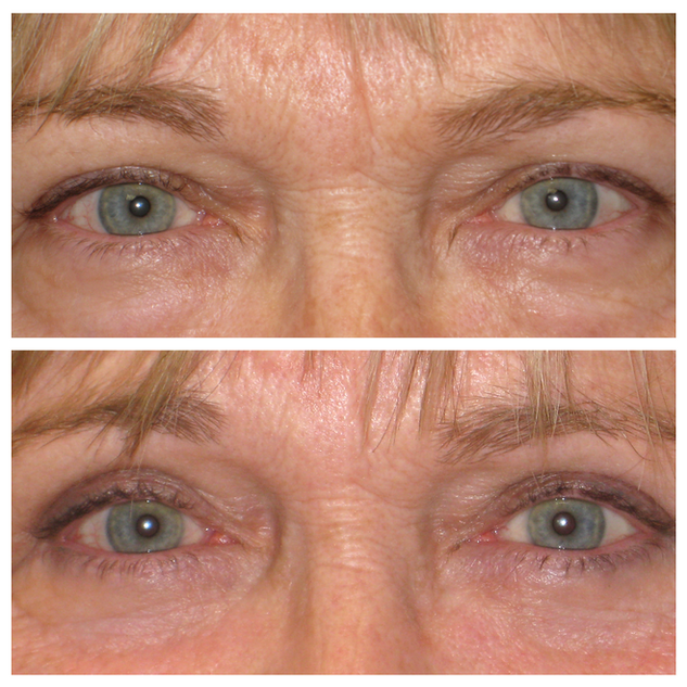 upper_lower_blepharoplasty55.png