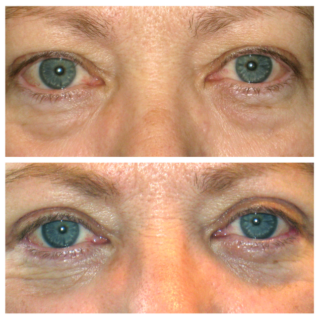 upper_lower_blepharoplasty56.png