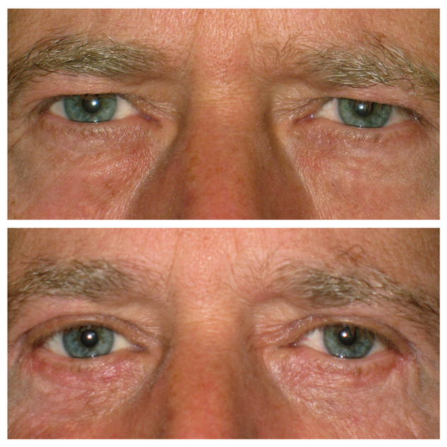 upper_lower_blepharoplasty61.png