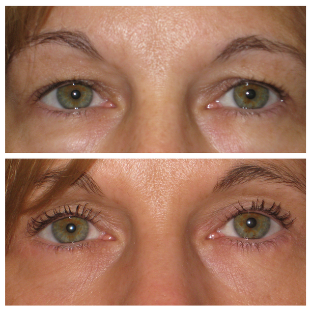 Upper & lower blepharoplasty 42 year old woman