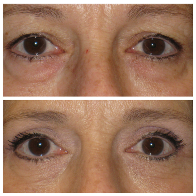upper_lower_blepharoplasty57.png