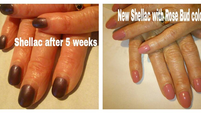 How amazing is Shellac