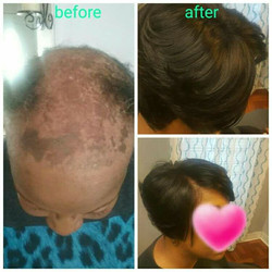 If you have been dealing with hair loss
