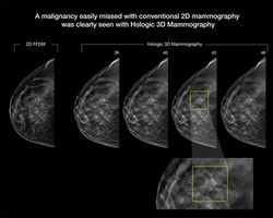 Tomosynthesis_3-D mammography detection