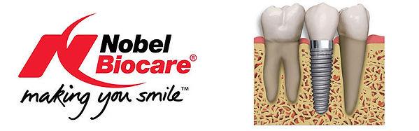 Dental Implants, Dentist in Harrogate, Nobel Biocare
