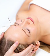 Woman with acupuncture needles in her forehead