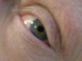 Doug's eye.jpg