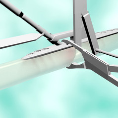 Ulnar Osteotomy Compression Plate Animation