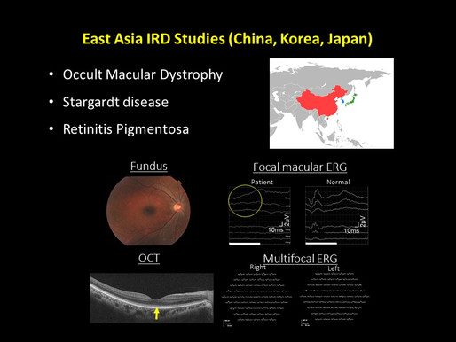 The baseline cohort of East Asia occult macular dystrophy studies was been established.